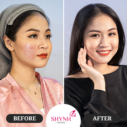 Dịch vụ new perfect Skin  - Shynh House